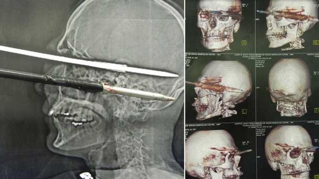 Un pescador brasileño se perfora el cráneo accidentalmente con un arpón y sobrevive