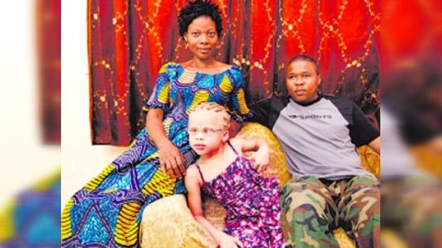 Israel acoge a una niña albina africana, blanco de cazadores supersticiosos