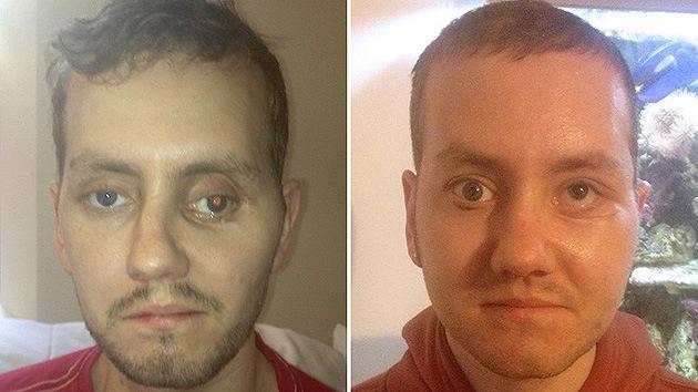 Médicos británicos restauran el rostro de un paciente mediante una impresora 3D