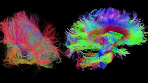 Fotos: Un escáner de nueva generación explora detalladamente el cerebro humano