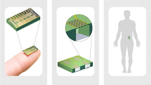Crean un microchip para controlar la natalidad a través de comunicaciones inalámbricas