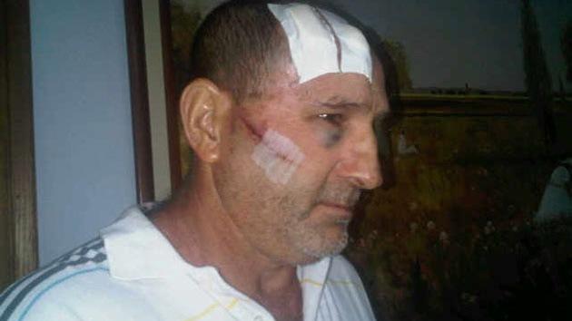 Enfrentamientos entre partidarios de Chávez y de Capriles dejan al menos 10 heridos