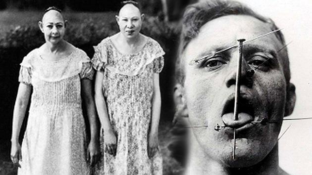 Escalofriantes retratos de los artistas de circo más extraordinarios de la historia