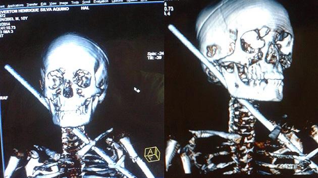 Un brasileño de 10 años sobrevive tras atravesarle el cuerpo una barra de acero