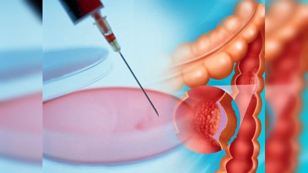 El análisis de heces, tan eficaz como la colonoscopia para detectar cáncer de colon