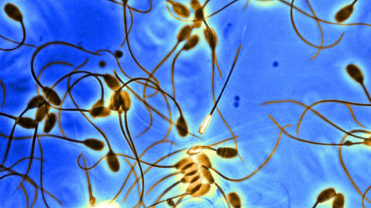 Crean células humanas capaces de convertirse en óvulos y espermatozoides
