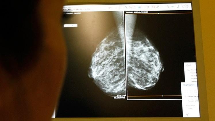 El cáncer, ¿una cuestión de 'mala suerte'?: Concluyen que la mayoría surgen por azar