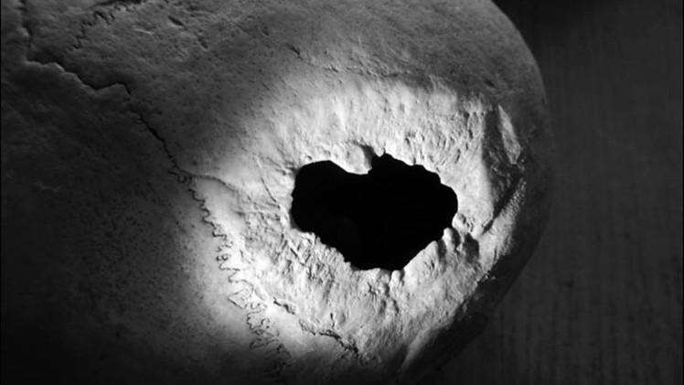Revelan cómo era la cirugía cerebral practicada en Siberia hace 2.300 años