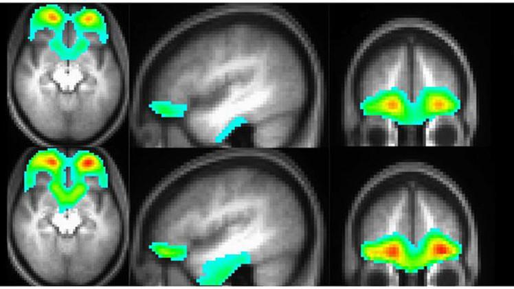 ¿Qué ocurre en el cerebro de un drogadicto?