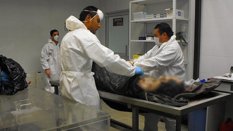 El médico mexicano que 'devuelve la vida' a los muertos revela a RT su fórmula secreta