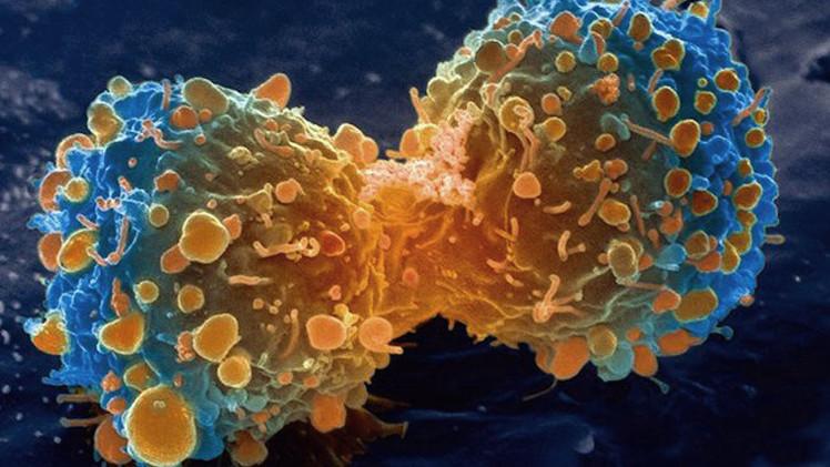 ¿Ya es posible curar las células cancerosas?