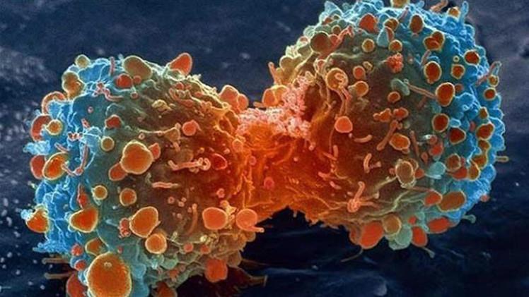 Avance científico: Colorante natural muestra su eficacia para combatir el cáncer