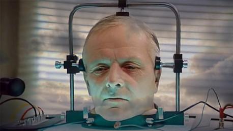 El primer trasplante de cabeza de la historia: ¿Revolución científica o pura fantasía?