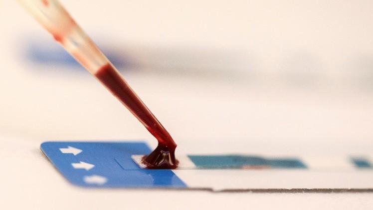 Científicos encuentran una manera de matar el VIH