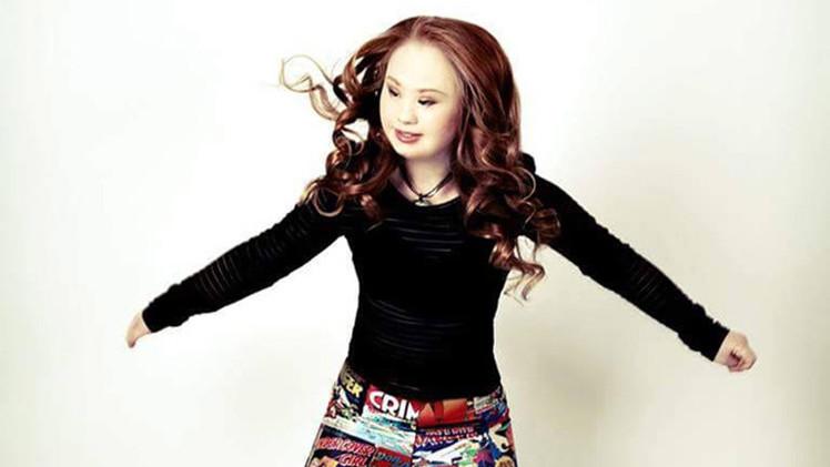 Desafiando el mito de la belleza: Una joven con síndrome de Down inspira en las redes
