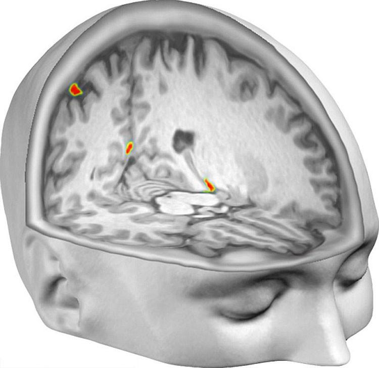 Escáneres cerebrales revelan qué sucede durante las experiencias 'fuera del cuerpo'