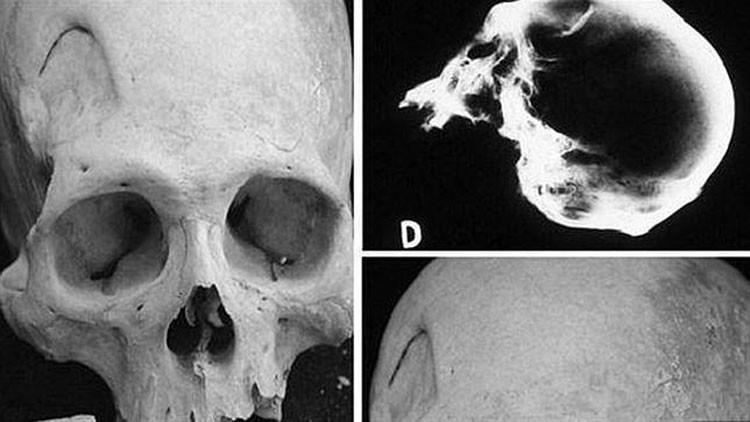 Esqueletos hallados junto al Titicaca