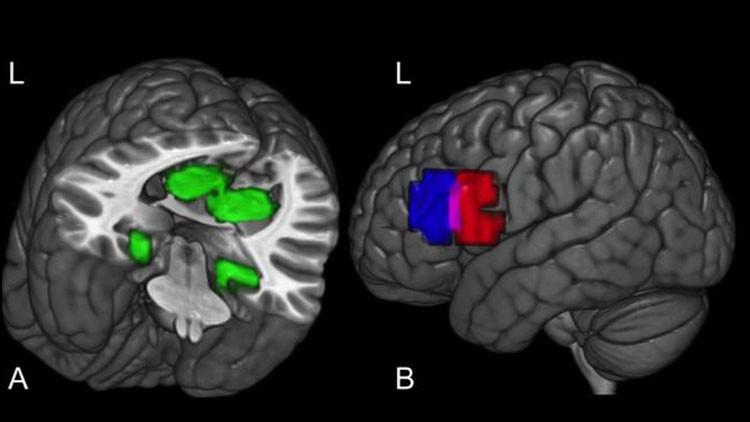Revelan secreto de cómo se forman nuevos conceptos en el cerebro