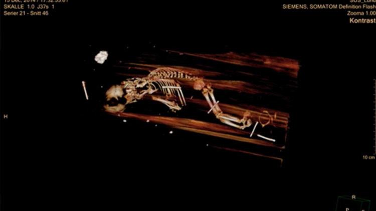 """Radiografía del ataúd de un obispo sueco revela que """"no estaba solo en su sepultura"""