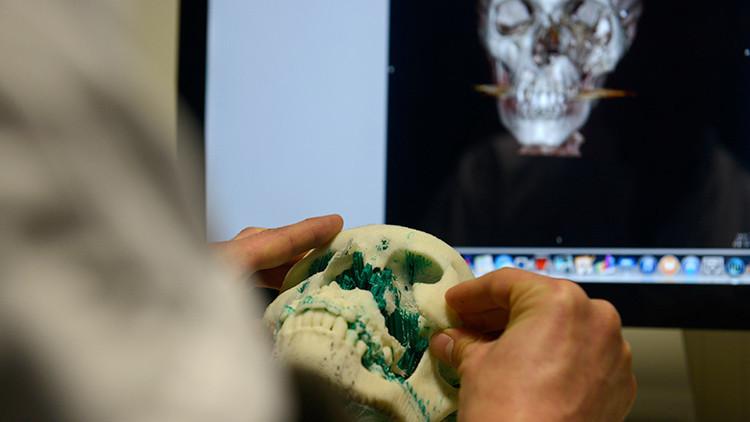 Por primera vez en la historia transplantan a una niña de tres años un cráneo hecho en impresora 3D