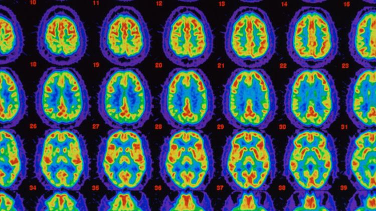 Un nuevo medicamento podría atacar las causas del Alzheimer leve