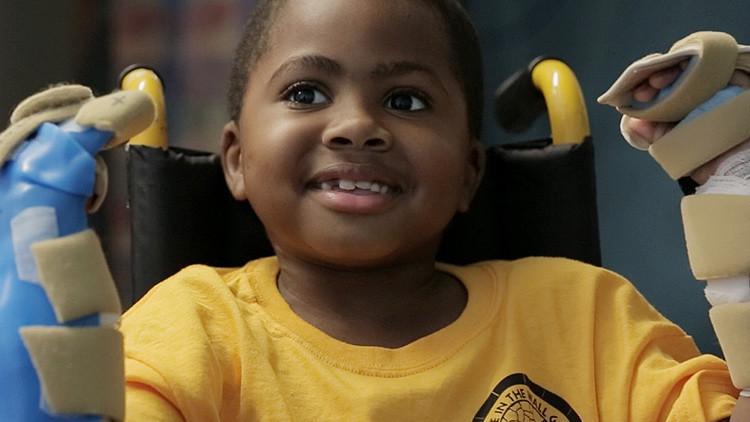 Trasplantan ambas manos a un niño por primera vez en el mundo