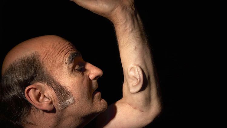 Un profesor australiano 'cultiva' una oreja en su brazo para conectarla a Internet