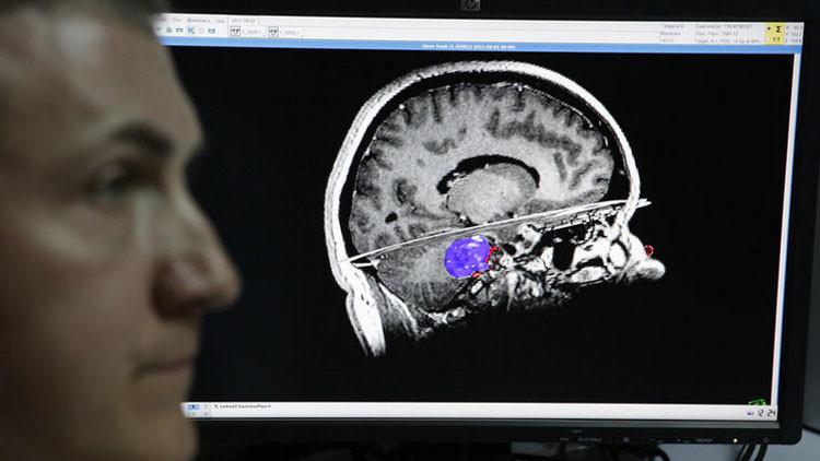 Científicos rusos crean un cerebro artificial, capaz de aprender por sí mismo