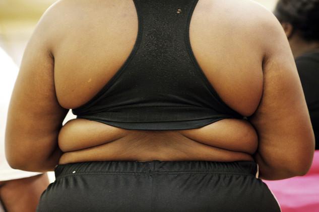 Estudio: La aspirina reduce el riesgo de cáncer de colon en pacientes obesos