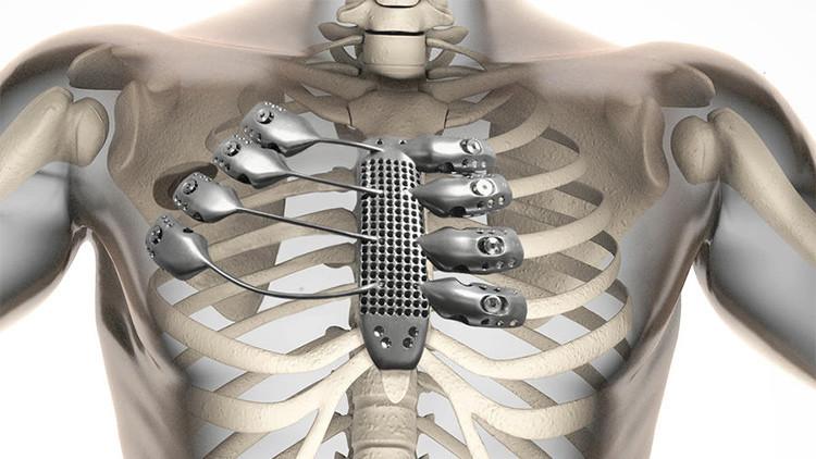 Implante pionero de costillas metálicas impresas en 3D