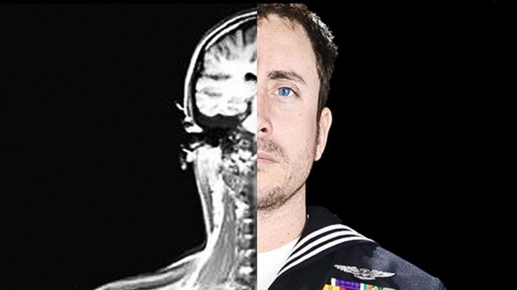El Pentágono implanta 'chips de memoria' en los cerebros de 24 voluntarios