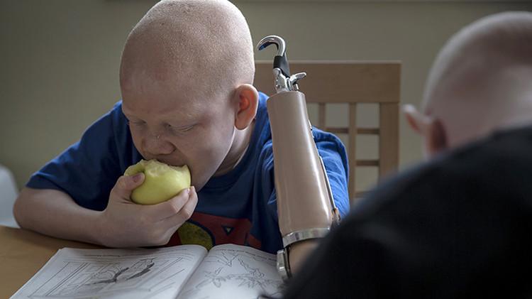 Video, Fotos: Las escalofriantes historias de los albinos en Tanzania