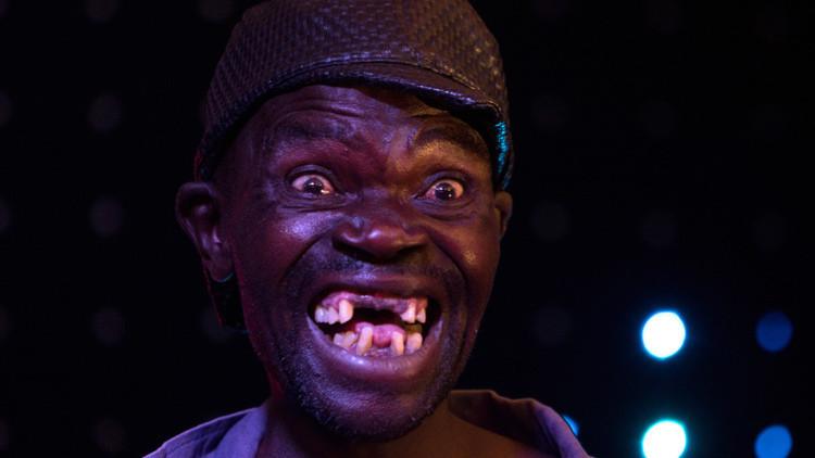 """Maison Sere, ganador del concurso """"Míster Feo"""" en Zimbabwe"""
