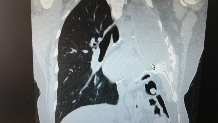 """Asesino invisible"": un gas presente en muchos hogares podría causar cáncer de pulmón"