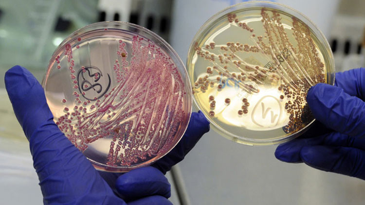 Revelan cómo las bacterias depredadoras se protegen al atacar a otros microorganismos
