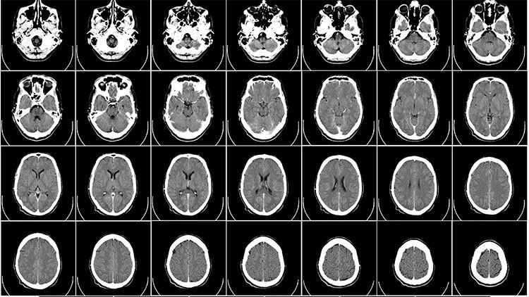 ¿Es el agua que bebe la causa directa de la aparición del alzhéimer?