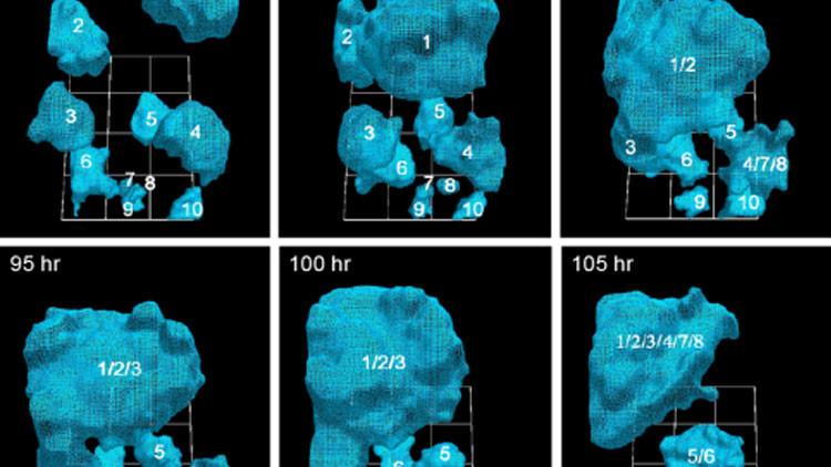 Video aterrador: Descubre cómo crece un tumor canceroso en 3D