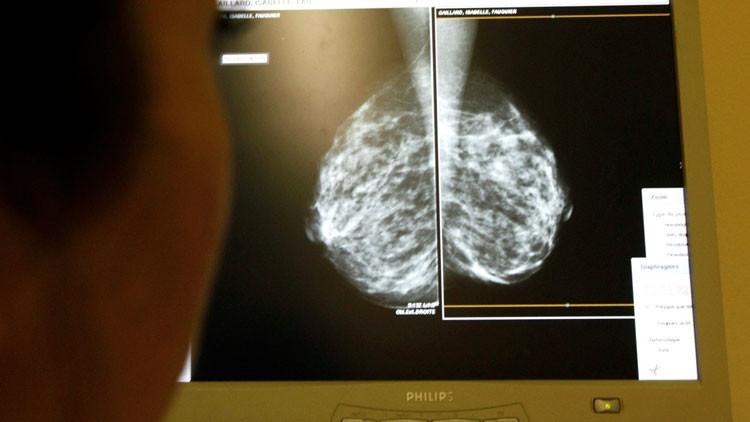 Un simple suplemento puede detener el cáncer