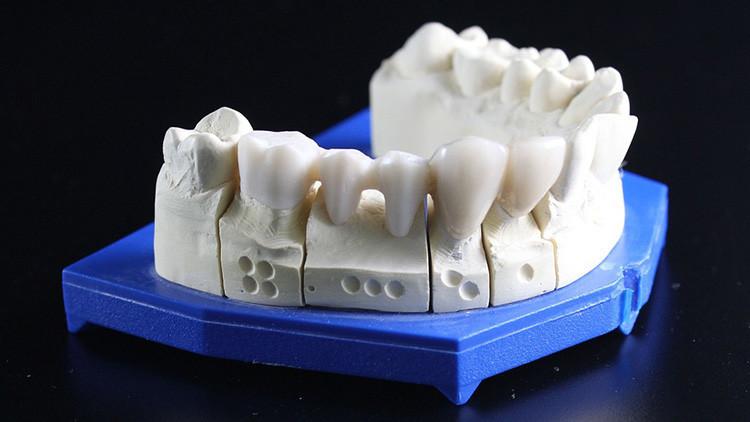 Los científicos revelan una causa inesperada que provoca dolor de dientes