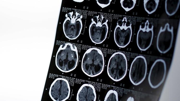 ¿Cómo destruimos nuestro cerebro a diario sin saberlo?