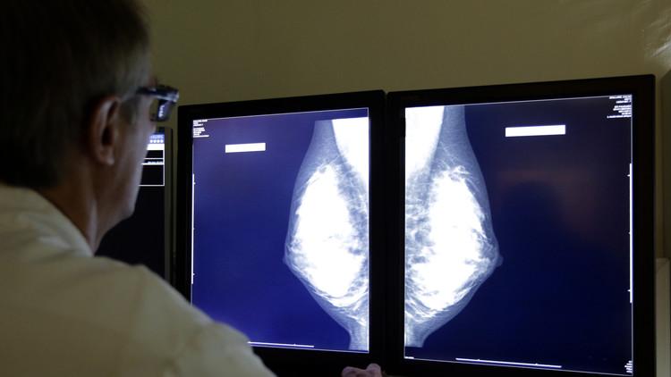 ¿Es posible destruir tumores en 11 días? Revelan nuevo método para luchar contra el cáncer de mama