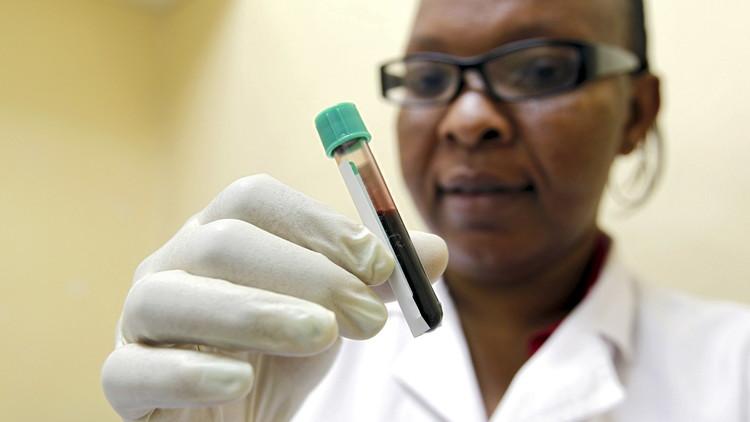 ¿Hallan en la sangre humana una 'llave' para vencer al VIH?