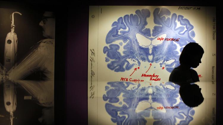 Los neurobiólogos descubren las posibles causas del alcoholismo
