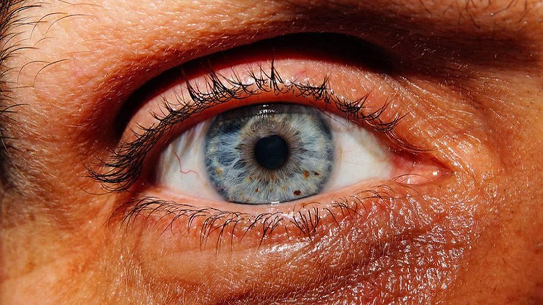 ver gusanos transparentes en los ojos