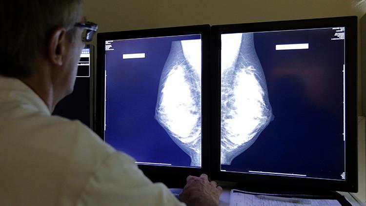 Hito en la ciencia genética: Hallan cinco nuevos genes vinculados con el cáncer de mama