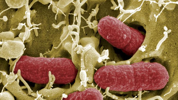 Descubren un 'supermicrobio' resistente a antibióticos muy potentes