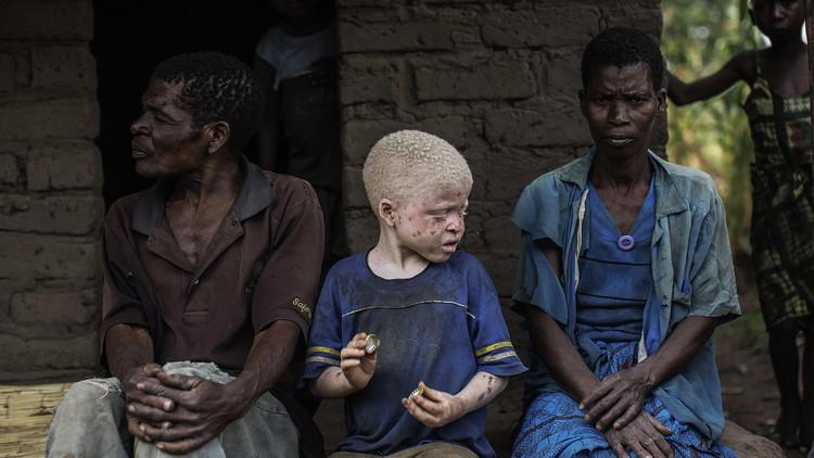 La caza de los niños albinos en África, víctimas de la magia y la superstición
