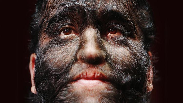 ¿Por qué existen los trastornos genéticos?: La ciencia resuelve la mayor paradoja evolutiva