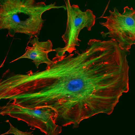Células endoteliales con el núcleo teñido de azul por un marcador fluorescente que se une fuertemente a regiones enriquecidas en adenina y timina en secuencias de ADN