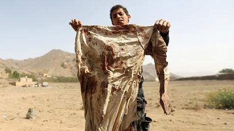 Un niño yemení sostiene unos trapos ensangrentados tras los bombardeos aéreos sauditas cerca de Saná